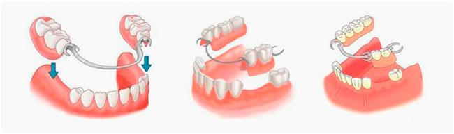Виды протезирования зубов в Запорожье