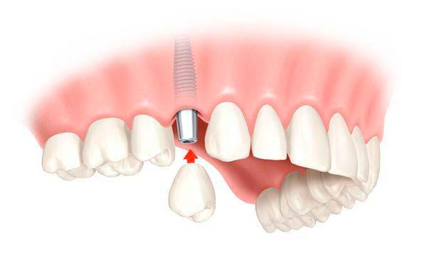 коронка для зуба