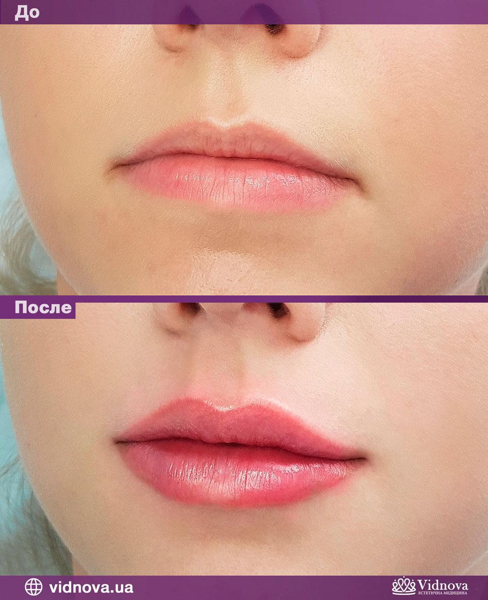 Пример увеличения губ до и после